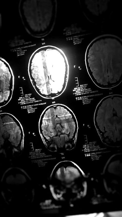 Imagem de anatomy, black and white, and head