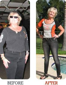 Thyroid hormone weight loss