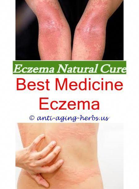 Eczema specialist los angeles The best moisturizer for