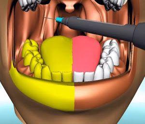 Cancer de maxilar