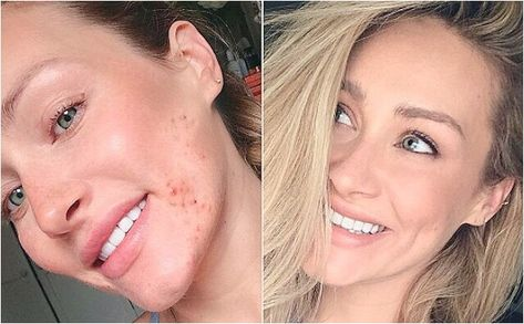 If you've been suffering from acne for a long time and think you've tried everything, hopefully you found something to help you in this article. As was stated at the beginning, acne can affect your life negatively. Don't let acne hold you back apply these tips today and see the difference.  *** Have a look at the picture by checking out the link. #acnecure