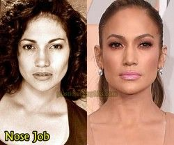 Jennifer Lopez Nose Job aesthetic aesthetic surgery job job before and after remodelling