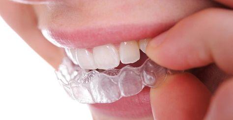 تقويم الاسنان الشفاف انفزلاين التخسيس السريع Dental Implants Dental Implant Procedure Teeth Straightening