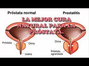 ¿puede una próstata inflamada ser peligrosa letra