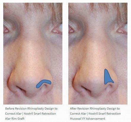 Compositetransplantat Rhinoplastik Rhinoplasty Retraction Composite Revision Demalar Einem Graft W Rhinoplasty Plastic Surgery Facial Plastic Surgery