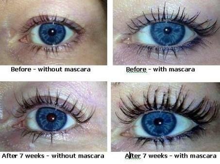 Careprost Latisse Works Buy Now Latisse Latisse Eyelashes Eyelash Growth