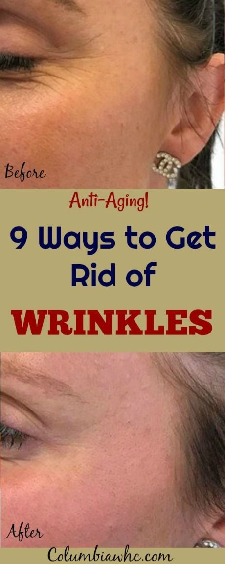 How To Get Rid Of Wrinkles On Face Fast Home Remedies For Wrinkles Fine Lines Crow S Feet Face Wrinkles Home Remedies For Wrinkles Anti Aging Skin Products