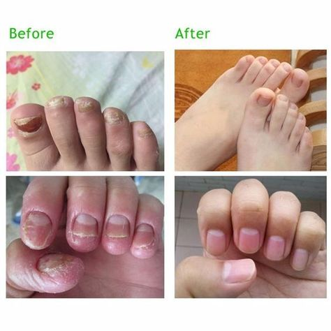 Fungal oil helps restore the healthy appearance of discolored or damaged nails caused by factors such as toenail fungus (onychomycosis) or psoriasis.#fungalnailtreatment #nailtreatmentgrowth #nailtreatmentproducts #toenailtreatment #naturalnailtreatment #nailtreatmenthealthy