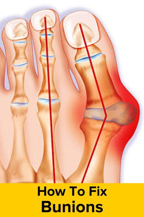 Dr. Diag - Metatarsophalangealis izületi arthrosis