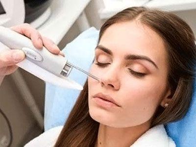 Laser mole removal fom the face | Skin Moles in 2019 | Laser mole