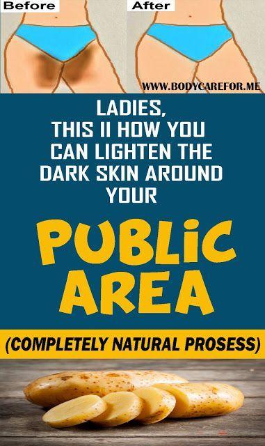 2d4d0c58103b4873d9787a41f2721ccd - How To Get Rid Of Dark Skin Near Private Parts