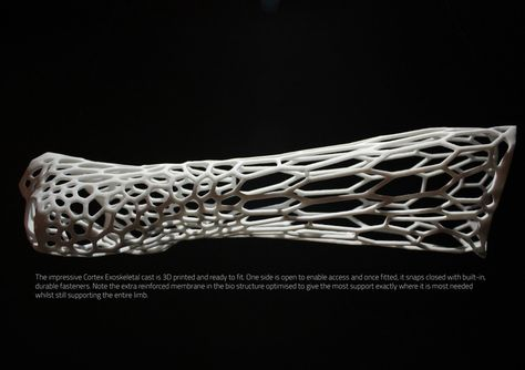 The cortex cast utilizes the x-ray and 3d scan of a patient with a fracture and generates a 3d model in relation to the point of fracture.