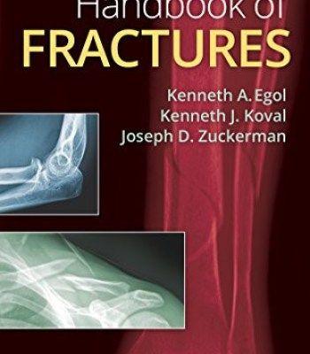 Handbook Of Fractures Fifth Edition PDF | zuckerman | Ebook pdf, Pdf