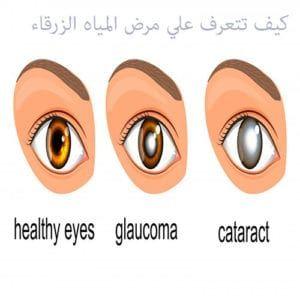أهم المعلومات عن مرض المياه الزرقاء في العين الجلوكوما Healthy Eyes Healthy Health