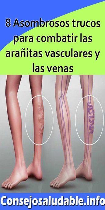 8 Asombrosos Trucos Para Combatir Las Arañitas Vasculares Y Las Venas Varicosas Arañitas Vasculares Diet And Nutrition Health Health Fitness