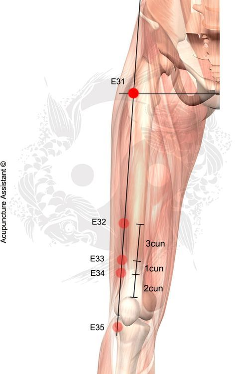 Dolor acupuntura piernas ayuda de