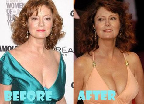 Susan Sarandon Plastic Surgery Before and After Pictures - Panissue Share