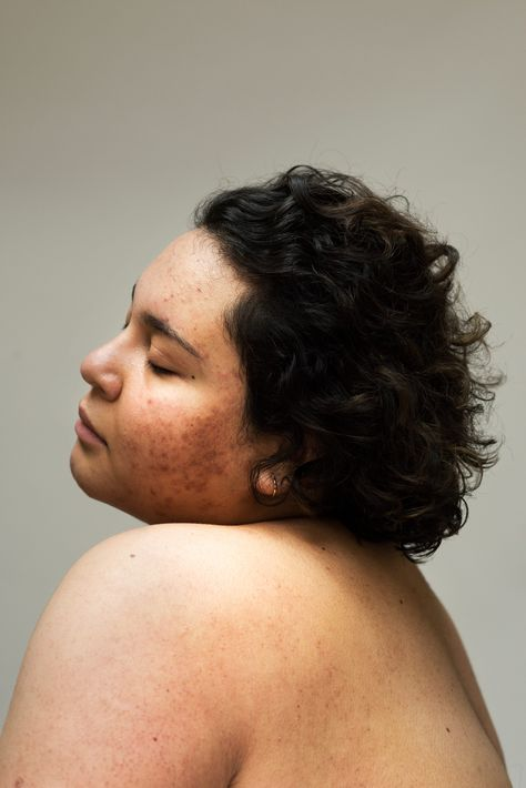 how one photographer's struggle with acne inspired her most vulnerable portrait series yet – Daily Post Africa People Photography, Portrait Photography, Human Photography, Female Body Photography, Inspiring Photography, Beauty Photography, Creative Photography, Digital Photography, Street Photography