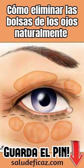 remedios caseros para quitar las bolsas en los ojos