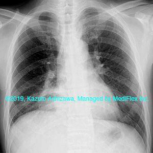 症例013:肺膿瘍/肺化膿症 胸部単純X線写真 | X線写真, 肺, 写真