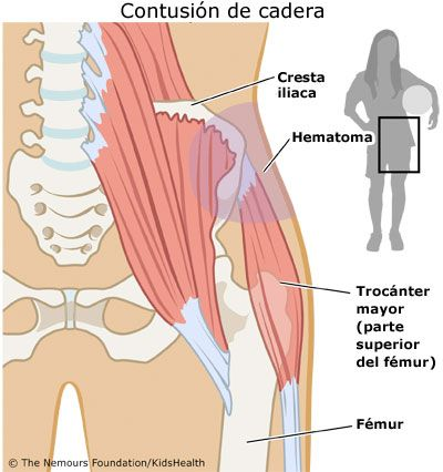 parte superior de la cadera