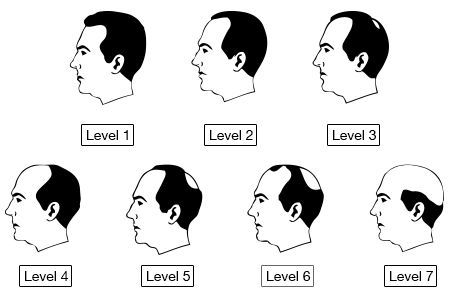 The Norwood Scale The Norwood Scale Is A Classification System That Helps Diagnose Alopecia Skin And Hair Clinic What Causes Hair Loss Male Pattern Baldness