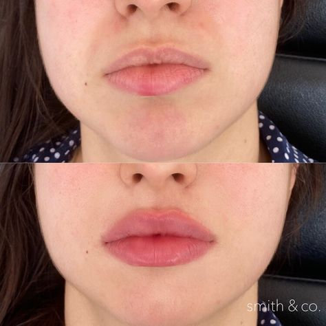 Facial Fillers, Botox Fillers, Lip Fillers, Nose Plastic Surgery, Celebrity Plastic Surgery, Cupids Bow Lips, Lip Job, Lip Permanent Makeup, Botox Lips