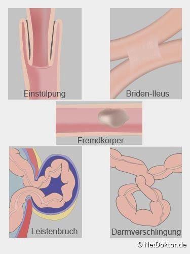 Darmverschluss Darm Anatomie Und Physiologie Anatomie