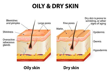 10 best home remedies to remove dandruff   styles at life   oily skin  remedy, dry oily skin, oily skin problem  pinterest