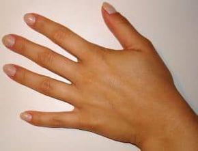 Hautpilz Hausmittel Hausmittelhexe Pilz Auf Der Haut Hautpilz Behandeln Pilze