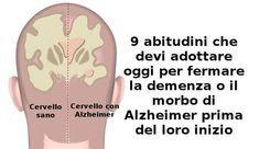 demenza da perdita di memoria a lungo termine