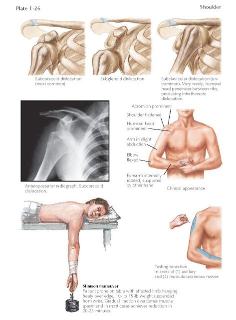 Anterior Dislocation Of Glenohumeral Joint Shoulder Dislocation