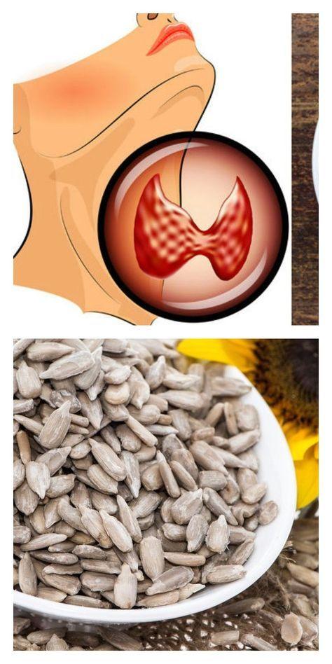 varicoză și examen medical
