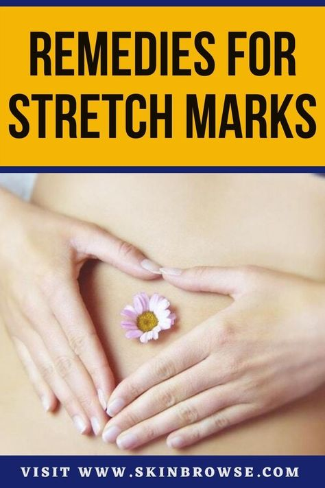 Do you want to get rid of strechmarks on stomach permanently? In this blog you will learn how to remove strechmarks on stomach. Strechmarks can lower your self esteem and they can be embarrassing but you can learn how to remove strechmarks on hips. Many bloggers hide these tips on how to remove strechmarks permanently. These are the best tips for strechmarks removal. #healthandfitness #healthquoteswellness #healthmotivation #femininehealth #sponsored