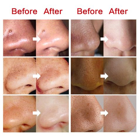 Blackhead Export Liquid Remove Blackhead Deep Cleansing Softening Horny Face Skin Care Essence 10ml
