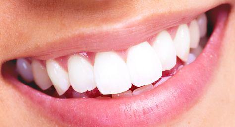 Paste za izbeljivanje zuba iskustva