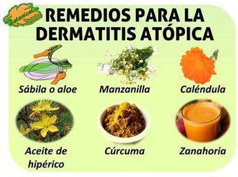 Medicamentos naturales para las alergias en la piel