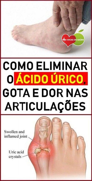 3 Remedios Caseiros Para Diminuir O Acido Urico Com Imagens