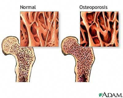 35++ Osteoporosis is a condition in which the bones become brittle info