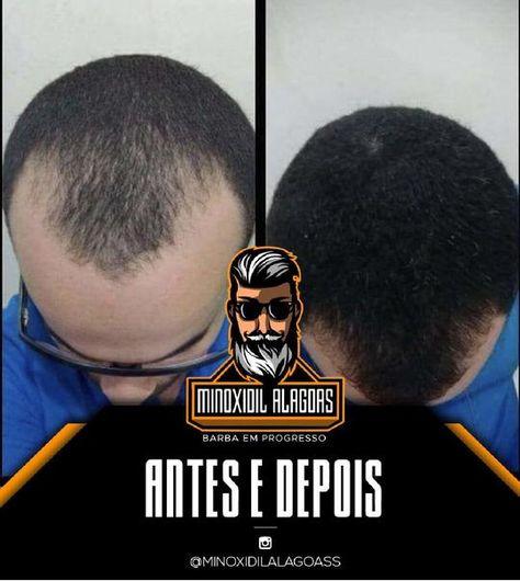 aldactone cause hair loss