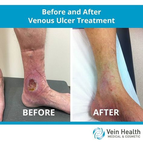 varicoseveins This 75 year old patient...