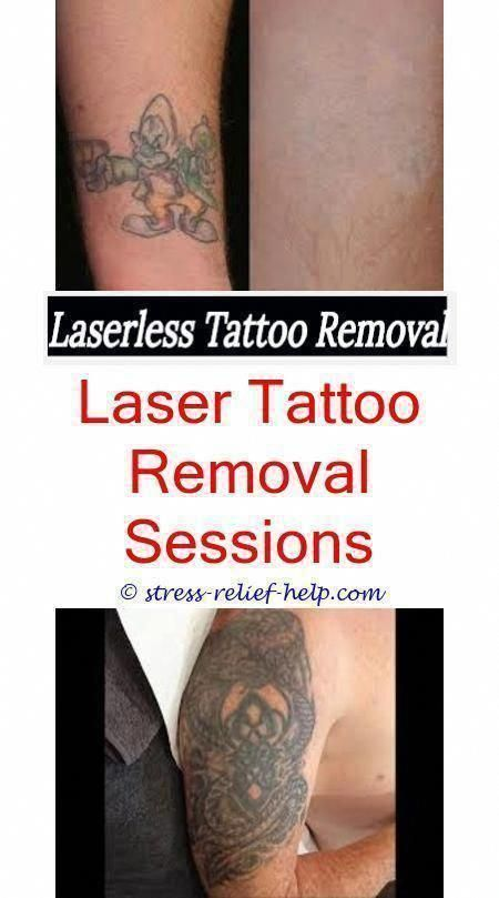 Best Form Of Tattoo Removal How Much For A Small Tattoo Removal
