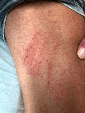 Rashes On Inner Thigh Lead To A Lot Of Itching Irritation And Frustration They Can Be Caused Due To Fu Home Remedies For Rashes Body Itches Inner Thigh Rash