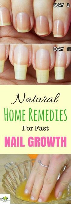Garlic And Lemon – Natural Nail Treatment | Stronger nails, Natural ...