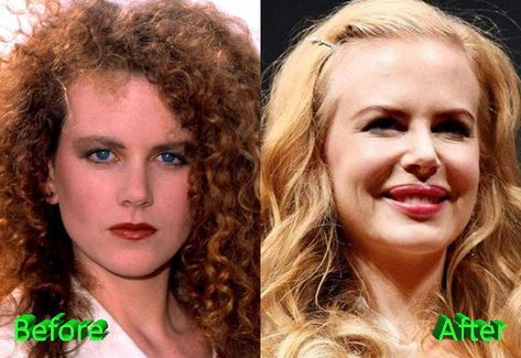 Nicole Kidman plastic surgery | Celebrity Plastic Surgery
