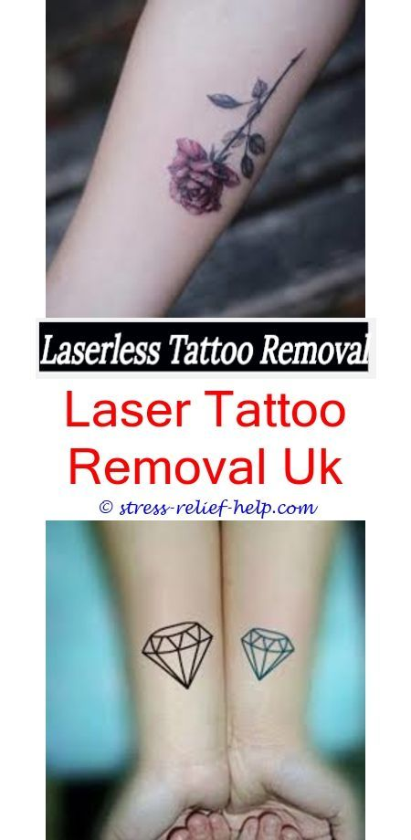 Laser Tattoo Removal Tattoo Removal Newcastle How Does Laser Tattoo Removal Cost Dermatologist Tattoo R Laser Tattoo Tattoo Removal Cost Temporary Tattoo Ink