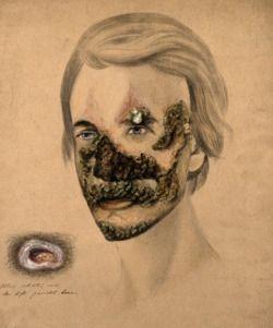 """Syphilid"" Illustration by Christopher D. Alton, 1855."