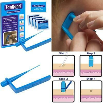 Advertisement Tagband Skin Tag Removal Device For Medium To Large