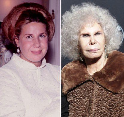 Duchess Of Alba Plastic Surgery Before And After Pics Face Bad Celebrity Plastic Surgery Bad Plastic Surgeries Celebrity Plastic Surgery