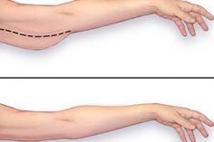Dank dieser einfachen Methode wirst Du dein Fett unter den Armen sofort los.